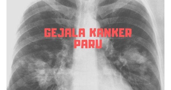 Gejala Kanker Paru + Infografis - dr. Angga Dewantara